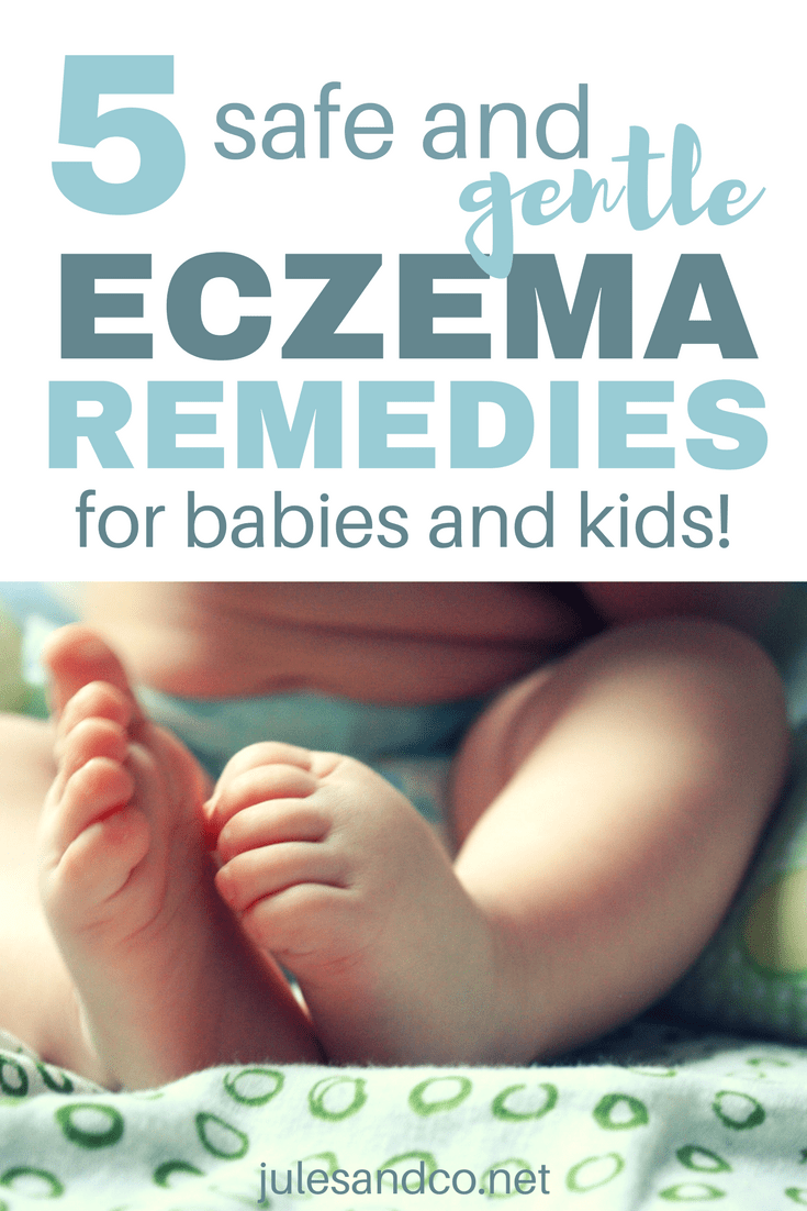 Tried all the expensive creams for your baby's eczema? Tired of seeing your child constantly itching and scratching? I was at the end of my rope until I discovered these five gentle and natural eczema remedies for kids and babies. Click through to help your child find eczema relief, too!