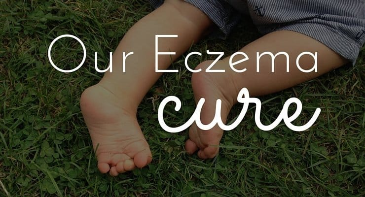 Our Eczema Cure: My 5 Step Plan to Get Rid of Eczema Naturally and Fast!